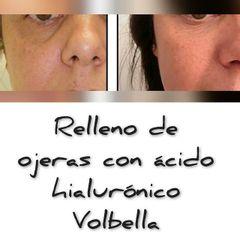 Antes y después Eliminación de ojeras - Renobell