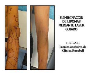 Antes y después Lipomas - Renobell