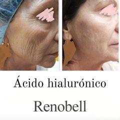 Antes y después Ácido hialurónico - Renobell