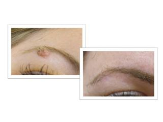 Eliminación de verrugas - Renobell