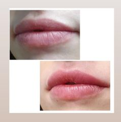 Aumento de labios - Renobell