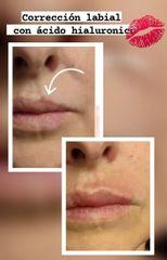 Corrección labial - Renobell