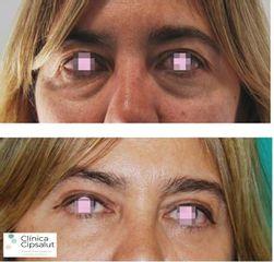 Blefaroplastia - Clínica Cipsalut