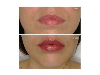 Aumento labios-701971