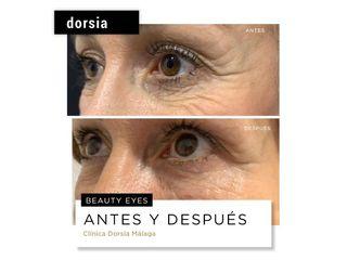 Eliminación de ojeras - Dorsia Clinicas De Estética