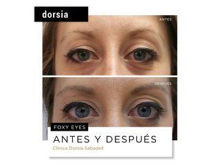 Hilos tensores - Dorsia Clinicas De Estética