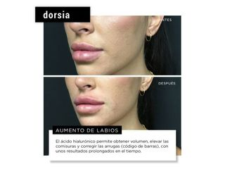 Aumento de labios - Dorsia Clinicas De Estética