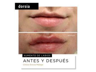 Aumento labios-701994