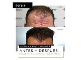 Microinjerto capilar - Dorsia Clinicas De Estética