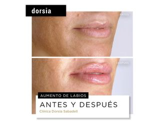 Aumento labios-702007
