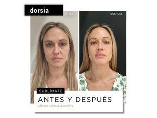 Rejuvenecimiento facial - Dorsia Clinicas De Estética