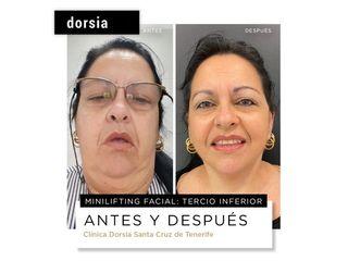 Liposucción de papada - Dorsia Clinicas De Estética