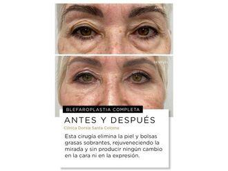 Cirugía estética-702030