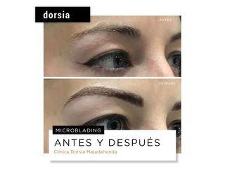 Microblading - Dorsia Clinicas De Estética