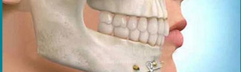 Cirugía-maxilofacial