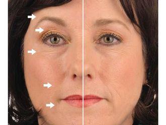 Rejuvenecimiento facial-498269