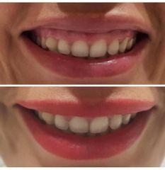 Sonrisa gingival con botox - Clínica Sansara