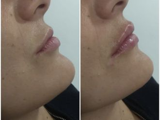 Aumento labios - 776035