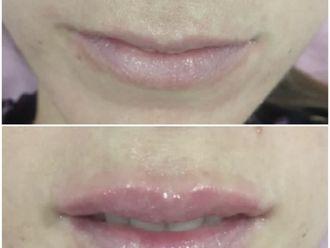 Aumento labios - 776039