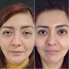 Eliminación de ojeras - Clínica Sansara