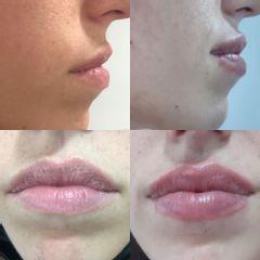Aumento de labios - Clínica Sansara