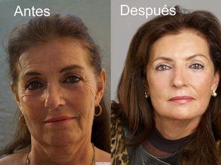 antes y después rejuvenecimiento