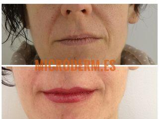 Antes y después Micropigmentación de labios