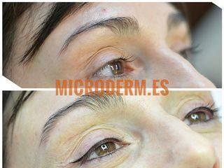 Antes y después Micropigmentacion de ojos