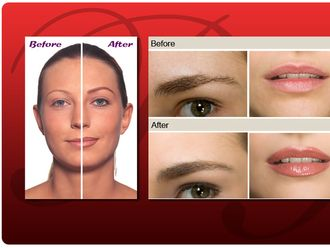 Tratamientos estéticos-540329