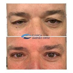 Blefaroplastia - Dr. Jiménez Ortiz