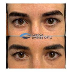 Eliminación de ojeras - Dr. Jiménez Ortiz