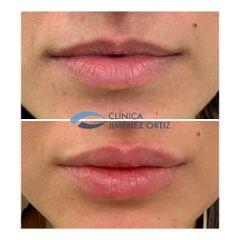 Aumento de labios - Dr. Jiménez Ortiz