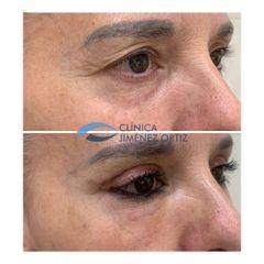 Blefaroplastia y Lipofilling - Dr. Jiménez Ortiz