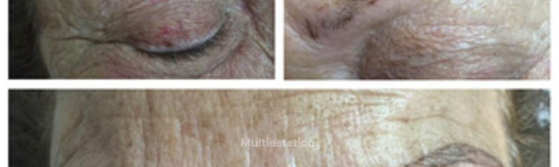 Mirall Medica. Micropigmentación Cejas