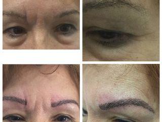Antes y después Micropigmentación Cejas