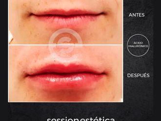 Medicina estética-685991