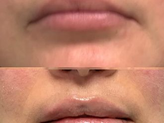 Aumento labios-741701