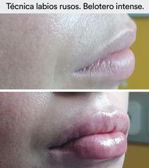 Aumento de labios - Hospital de la Reina