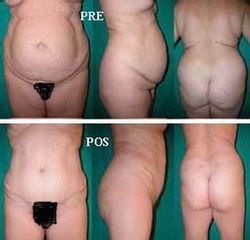 Abdominoplastia + Liposucción