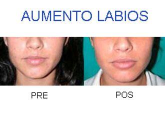Aumento labios-406795
