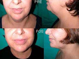Aumento labios-406801