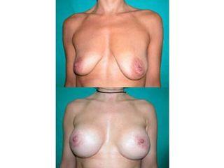 Aumento y elevación de mamas