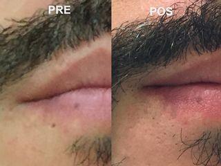 Corección de cicatrices piercing