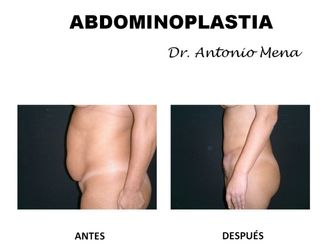 Abdominoplastia - 631286