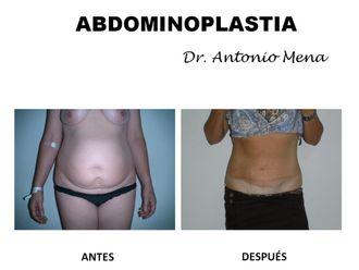 Abdominoplastia - 631287