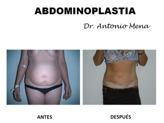 Abdominoplastia - 631288
