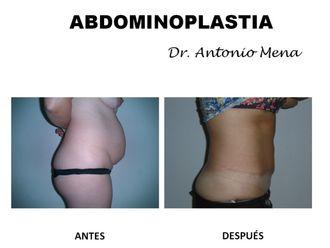 Abdominoplastia - 631289