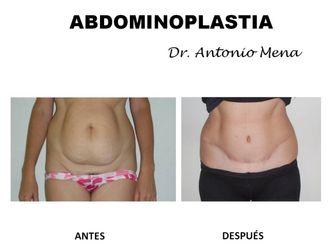 Abdominoplastia - 631290