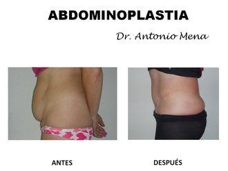 Abdominoplastia - 631291