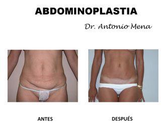 Abdominoplastia - 631292